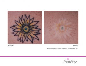 Photo of before and after tattoo removal using the PicoWay Laser