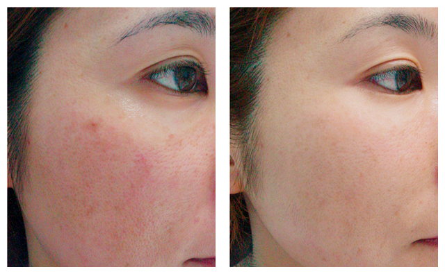Before and after photograph of a woman's cheek where rosacea has been treated using GentleMax.