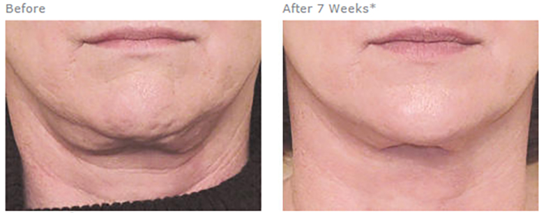Nectifirm neck rejuvenation treatment before and after photo.