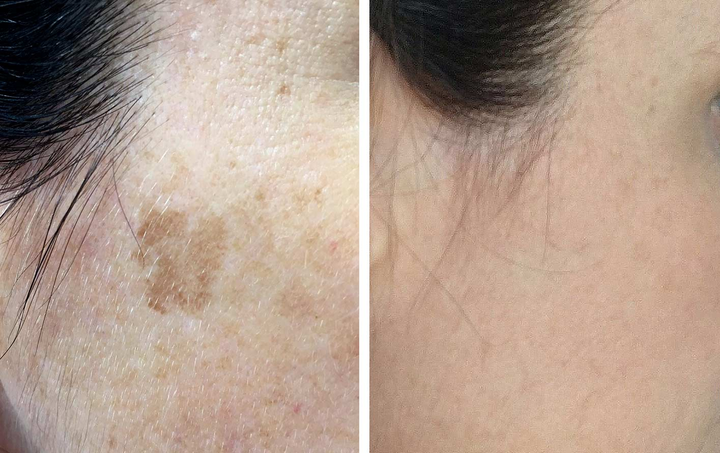 Before and after photo of treatment using the PicoWay Laser for removal of a facial age spot.