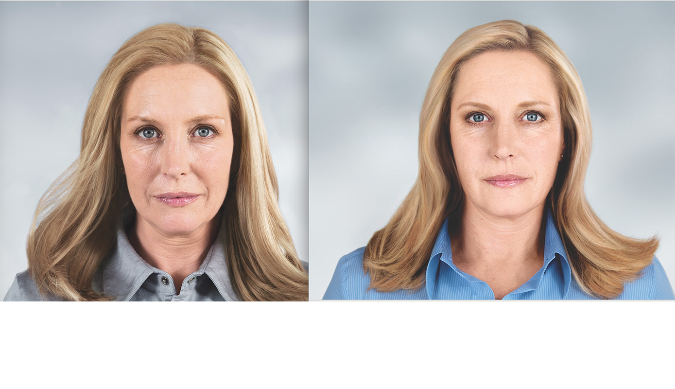 Before and after facial photo of Sculptra injectable patient.