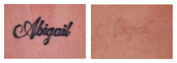Before and after of tattoo removal using the Picoway Laser