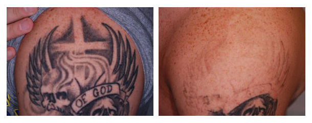 Before and after photos of tattoo removal using the Picoway Laser