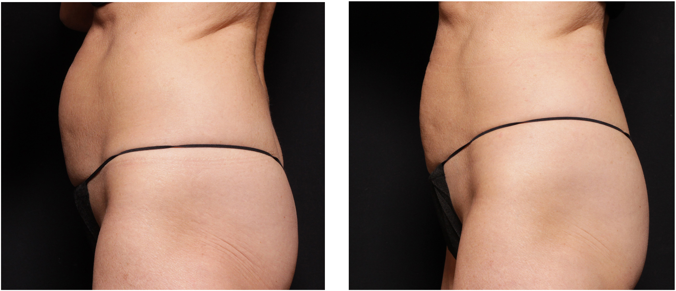 Before and after photograph of woman's abdomen following UltraShape Power body sculpting.
