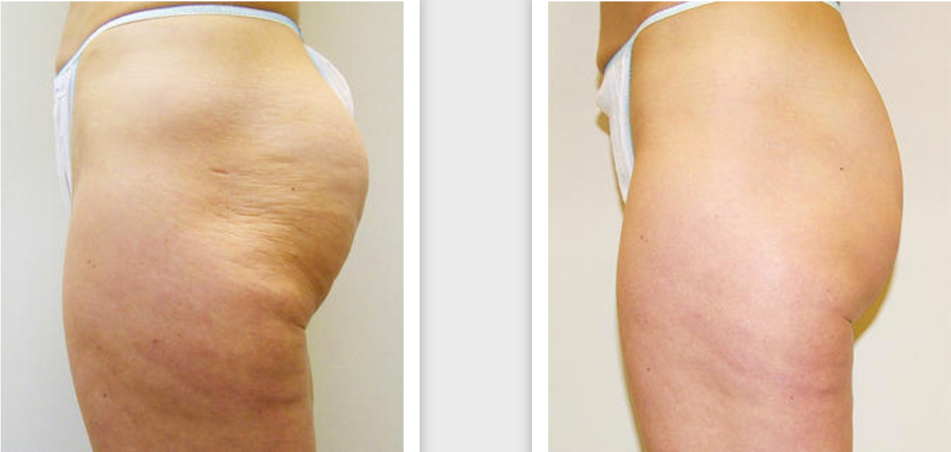 VelaShape Candela III treatment of the hip and buttocks area before and after.