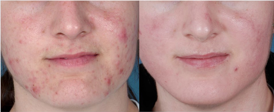 Before and after photo of young man following ZO Acne treatment.