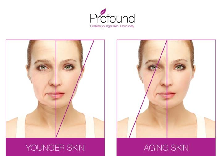 Before and After photo of woman who received a non-surgical facelift using the Profound treatment.